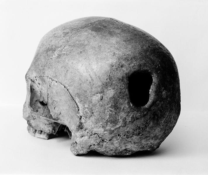 edinburgh_skull_trepanning_showing_hole_in_back_of_skull_wellcome_m0009393